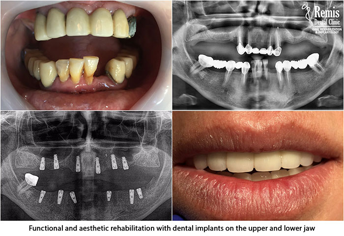 Implants - Same Day Teeth 4