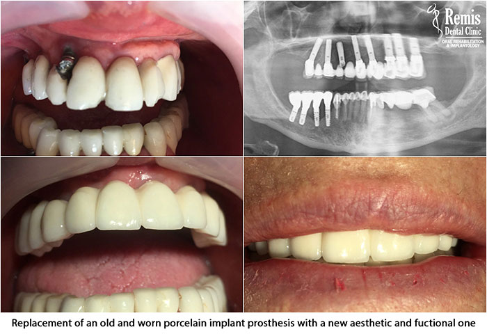 Implants - Same Day Teeth 5
