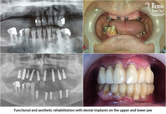 Implants - Same Day Teeth 8
