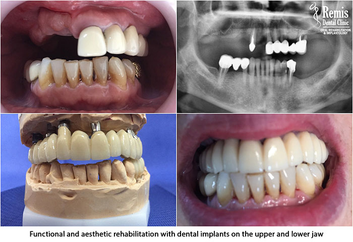 Implants - Same Day Teeth 9